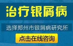 郑州治疗牛皮癣医院